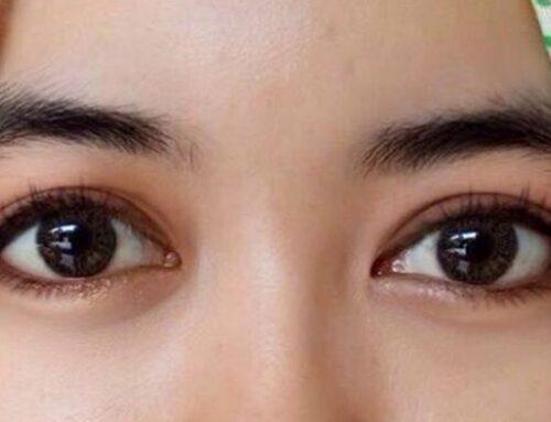 5 Tips Membuka Mata Untuk Menghilangkan Kemerahan!